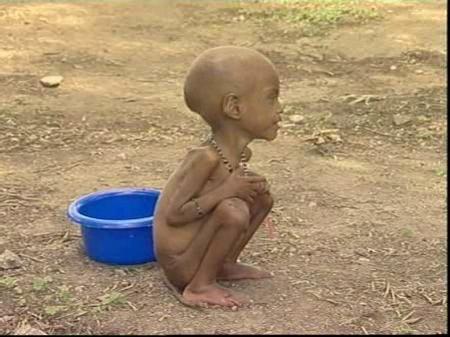 923_millones_de_personas_pasan_hambre_en_el_mundo_med